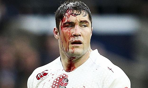Brad Barritt showing just how bloody the sport can get